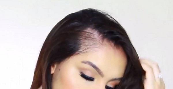 Cuáles son las causas de la alopecia